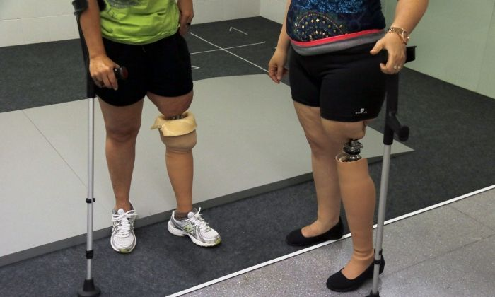 Detall de les pròtesi que es cargolen al fèmur, en dues pacients de l'Hospital de Mataró. Foto: ACN