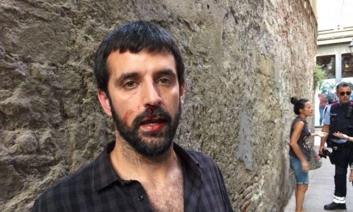 El fotoperiodista Jordi Borràs, després de l'agressió. Foto: Elmon.cat
