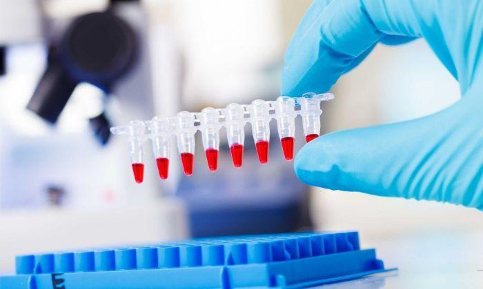 Imatge d'arxiu d'un test PCR